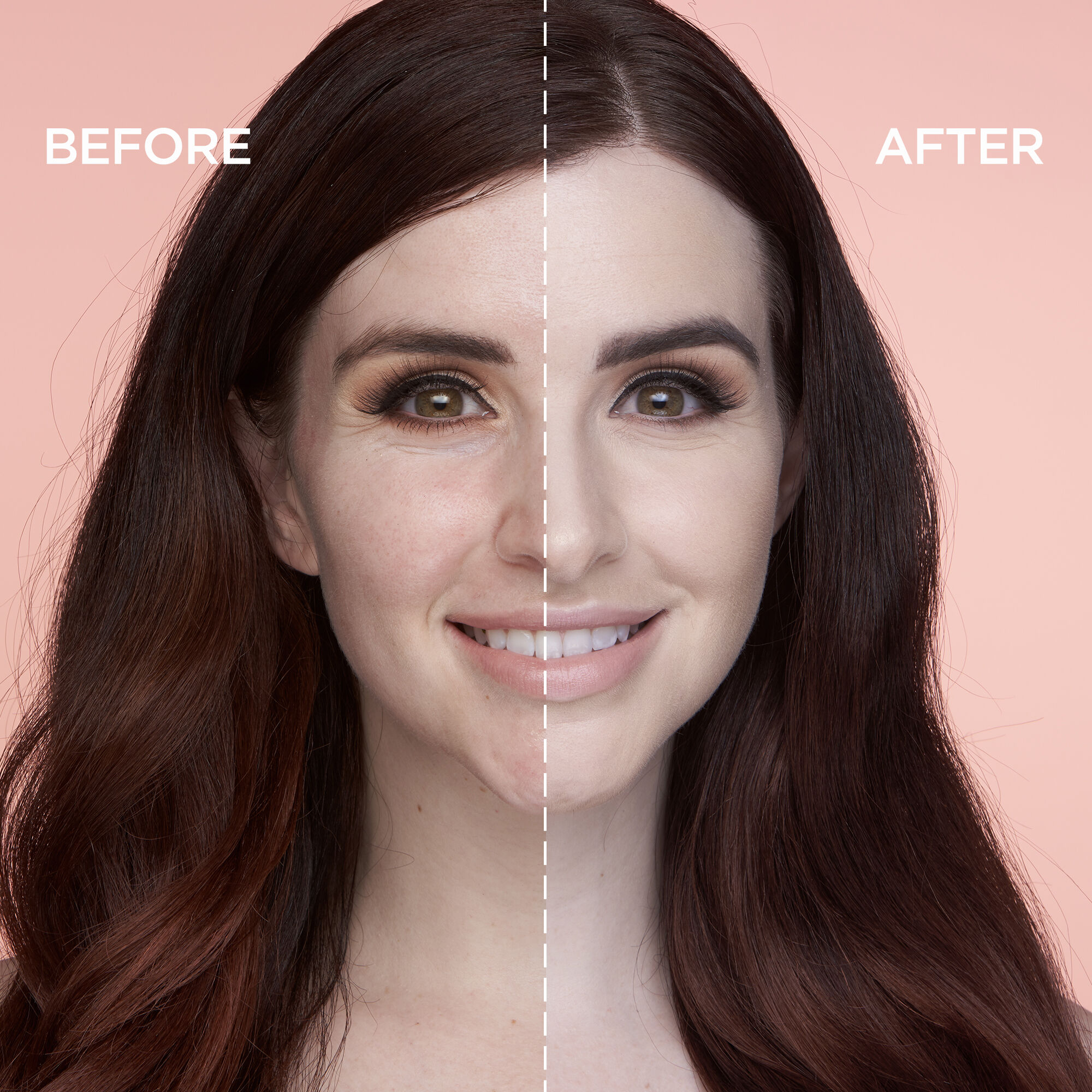 Skin Care Skin Whitening Bamboo Cream Remove Freckles/ Brown & Dark Spots Soft And Light